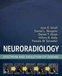 دانلود کتاب نورورادیولوژی طیف و تکامل بیماری Juan Small