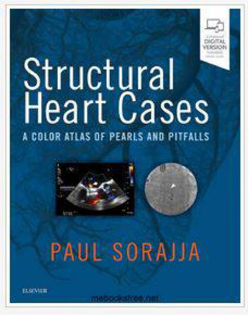 دانلود کتاب قلب ساختاری اطلس رنگی مروارید ها و اشتباهات Paul Sorajja